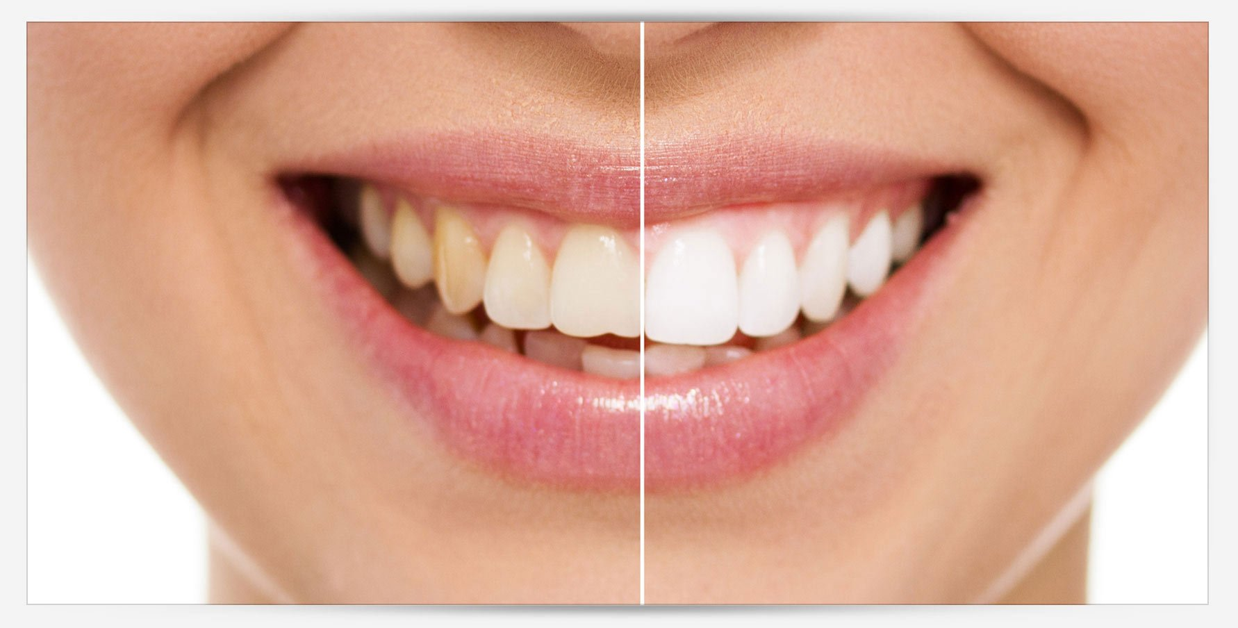 blue apple dental teeth whitening differentiation
