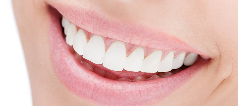 blue apple dental person smiling after tooth whitening