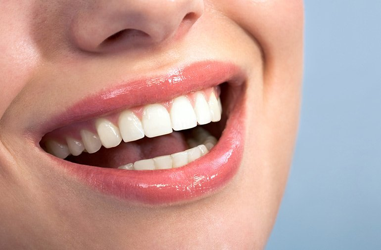 blue apple dental person smiling with healthy gums