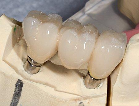 blue apple dental teeth bridging over a missing tooth