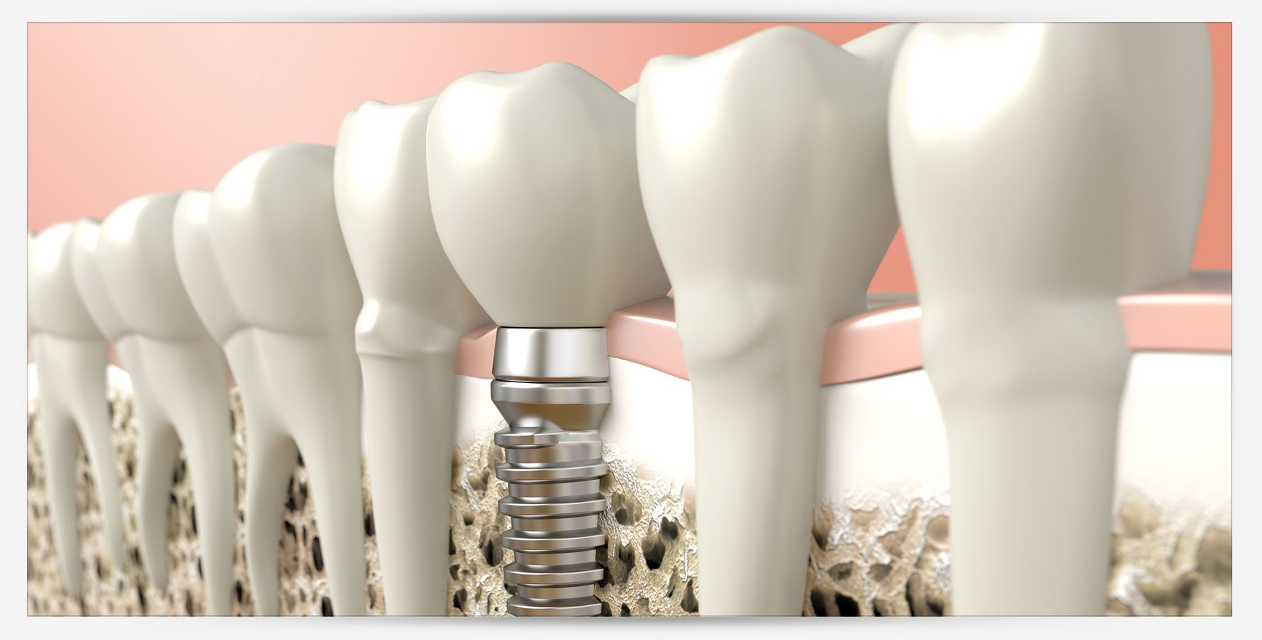 blue apple dental tooth implants