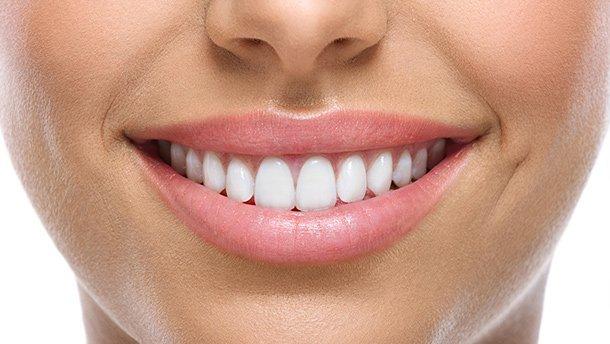blue apple dental veneers for discoloured teeth