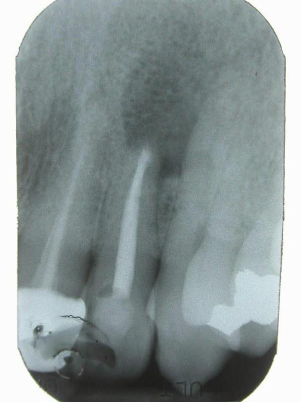 radiografia postoperatoria