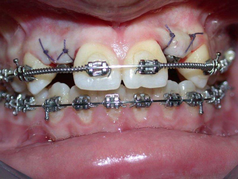 Inserimento impianti dopo trattamento ortodontico