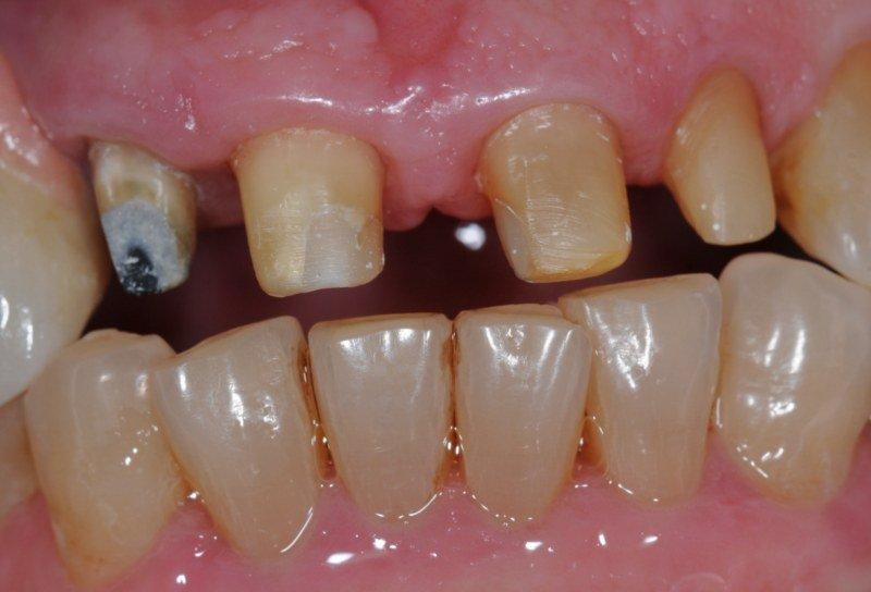 monconi dentali