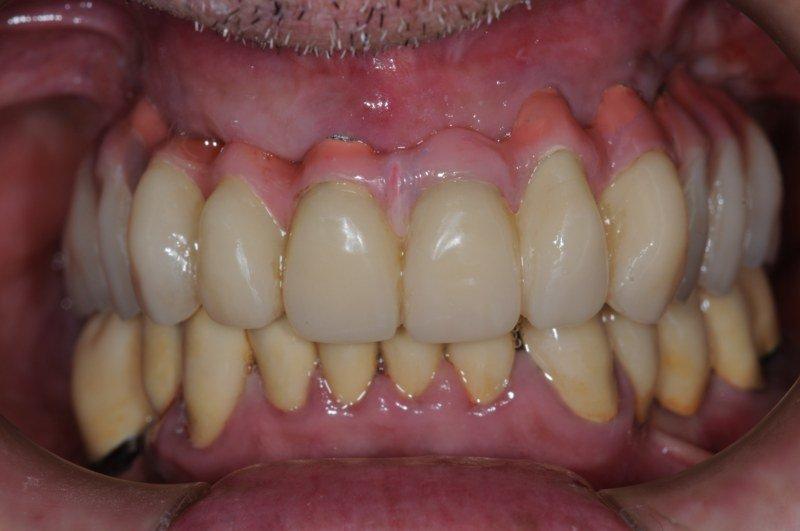 Protesi in bocca visione frontale
