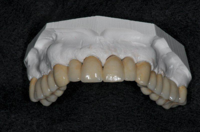 protesi su modello