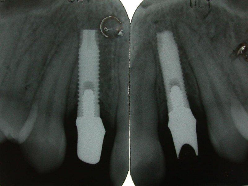 immagine radiografica