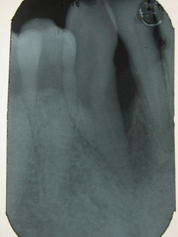 radiografia guarigione