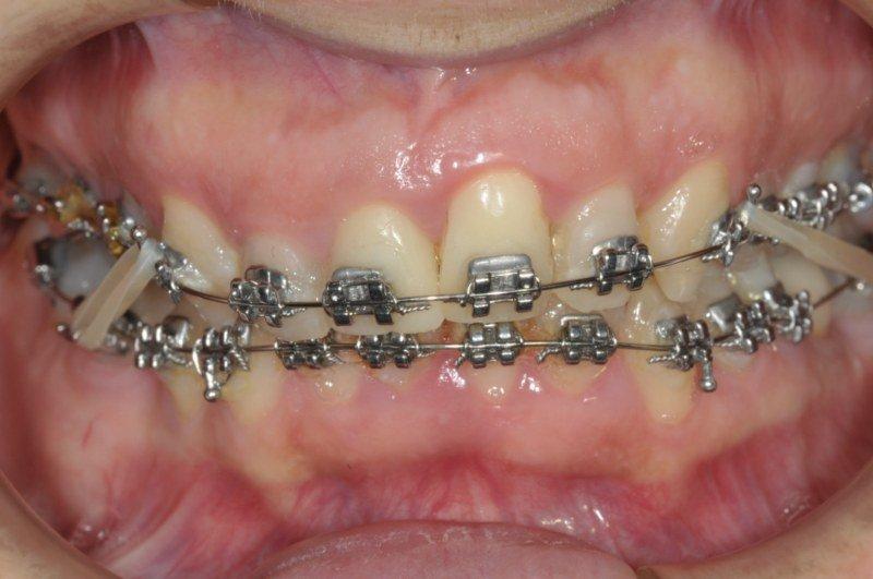 apparecchio ortodontico montato