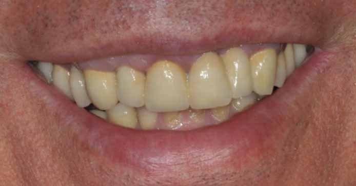 sorriso dopo il trattamento