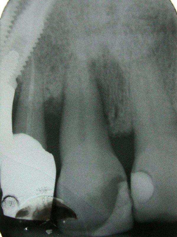 radiologia tasca infraossea