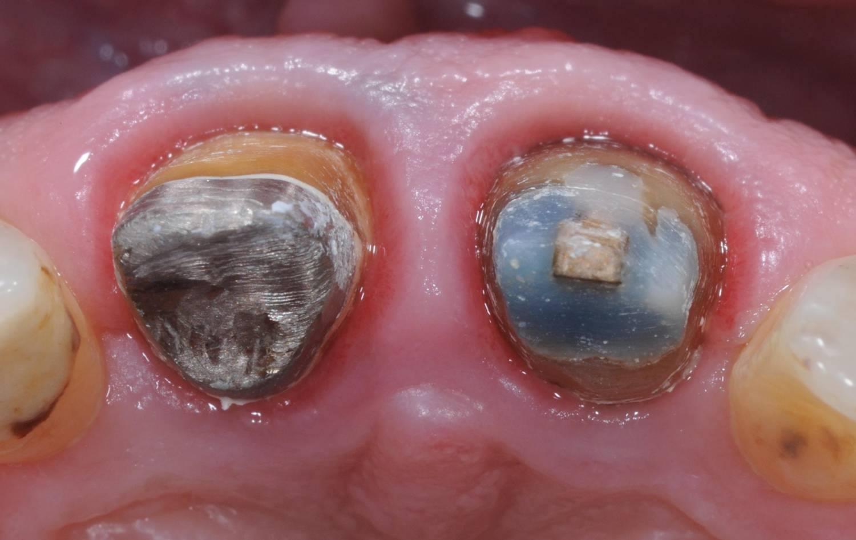 sfissaggio dente provvisorio