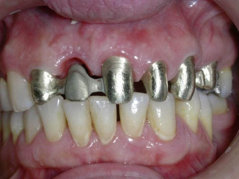prova struttura metallica