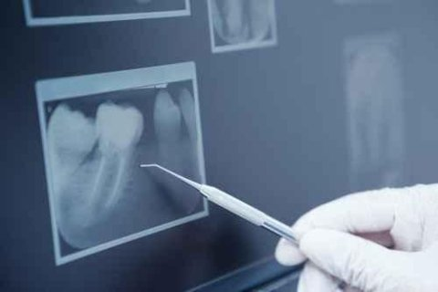 estrazione dente