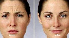 Botulino viso rughe trattamento iniezione