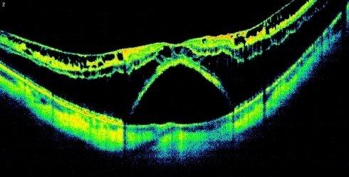 Miopia Schisi membrana epiretinica