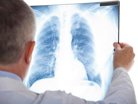 Radiologia generale