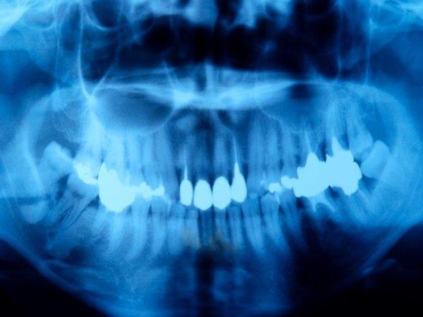 Cone Beam Dentale