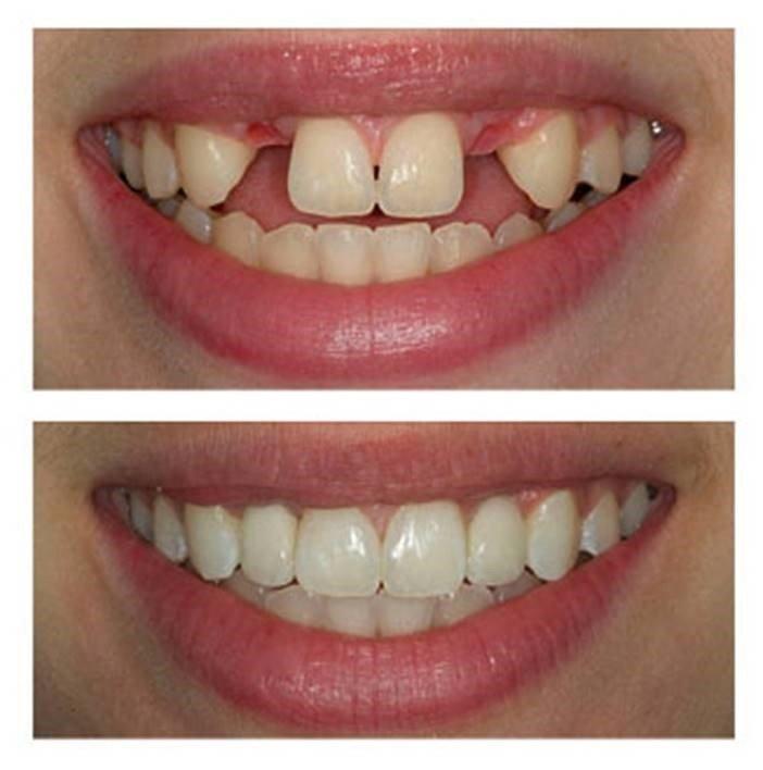 Dental Implants Houston TX