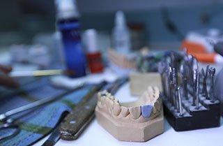 Wisdom Teeth Extractions Houston TX