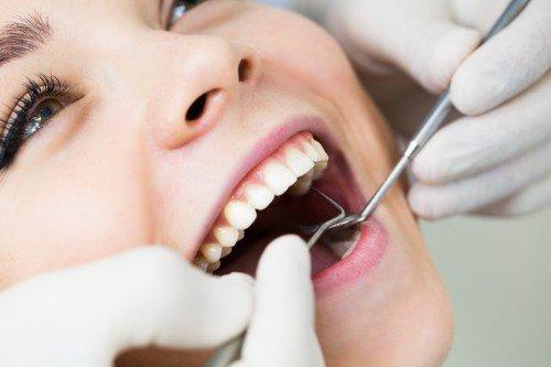 visite odontoiatriche specialistiche: donna che apre la bocca durante una visita
