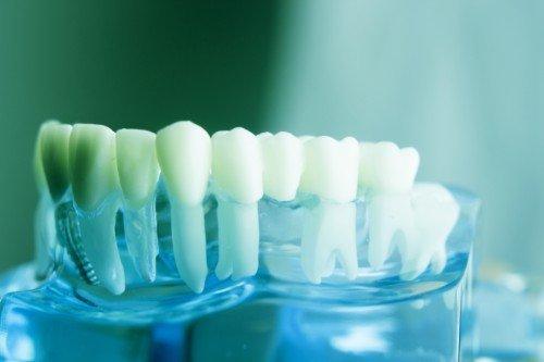calco di apparato dentale con problema di malocclusione