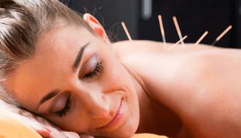 donna, terapia del dolore, agopuntura, aghi