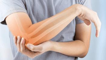 terapia dolore, gomito, braccio, rosso, ossa