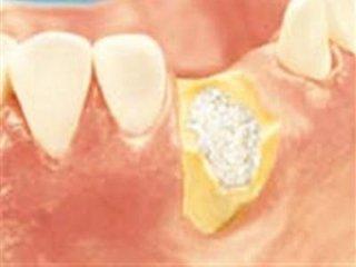 ricostruzione e impianto dentale torino