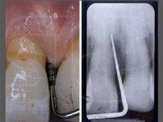 Diagnosi della malattia parodontale
