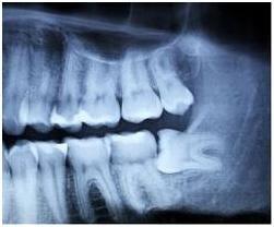 radiografia dente del giudizio