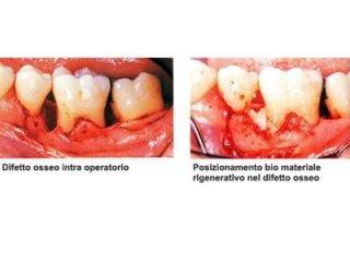 Chirurgia parodontale Torino