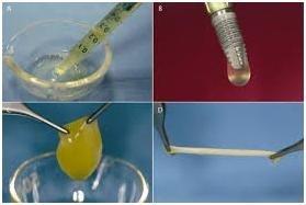 concentrati piastrinici per la chirurgia orale