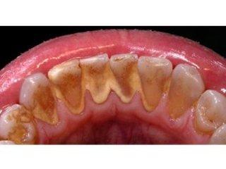 Conoscere la parodontologia