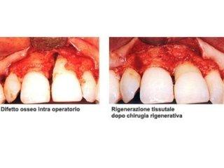 Tecniche di chirurgia parodontale Torino