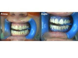 Procedura di sbiancamento dei denti