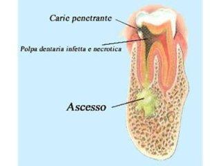 Progressione carie dentale
