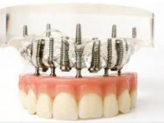 Implantologia a carico immediato Torino