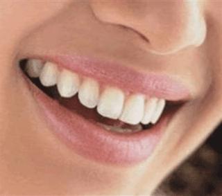Dentista convenzionato Fondo Est