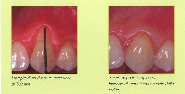 Difetti di recessione dentale