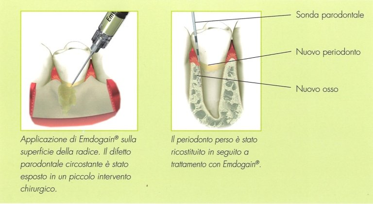 Emdogain nei difetti parodontali