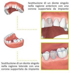Sostituzione di dente singolo