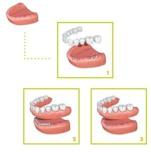 sostituzione tutti i denti