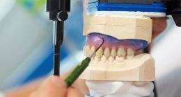 protesi dentali fisse, estetica dentale, ortodonzia fissa