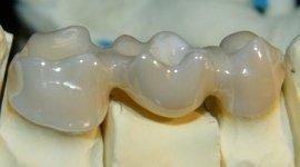 prodotti odontotecnici, protesi estetiche trasparenti, ribasatura protesi