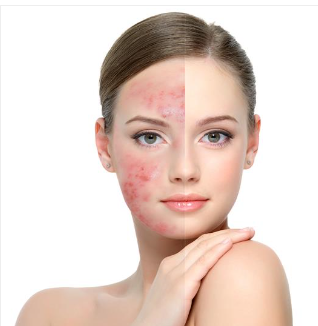 rosacea of facial Treating swelling