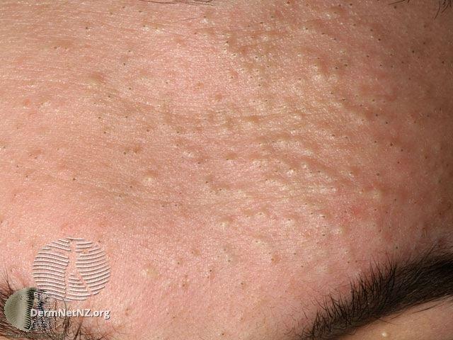 Giant Comedone Treatment: Giant Blackhead, Dilated Pore Of