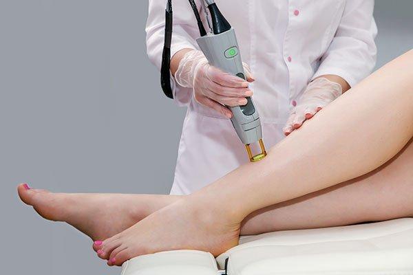 un'estetista che usa un dispositivo di epilazione a laser sulle gambe di una donna