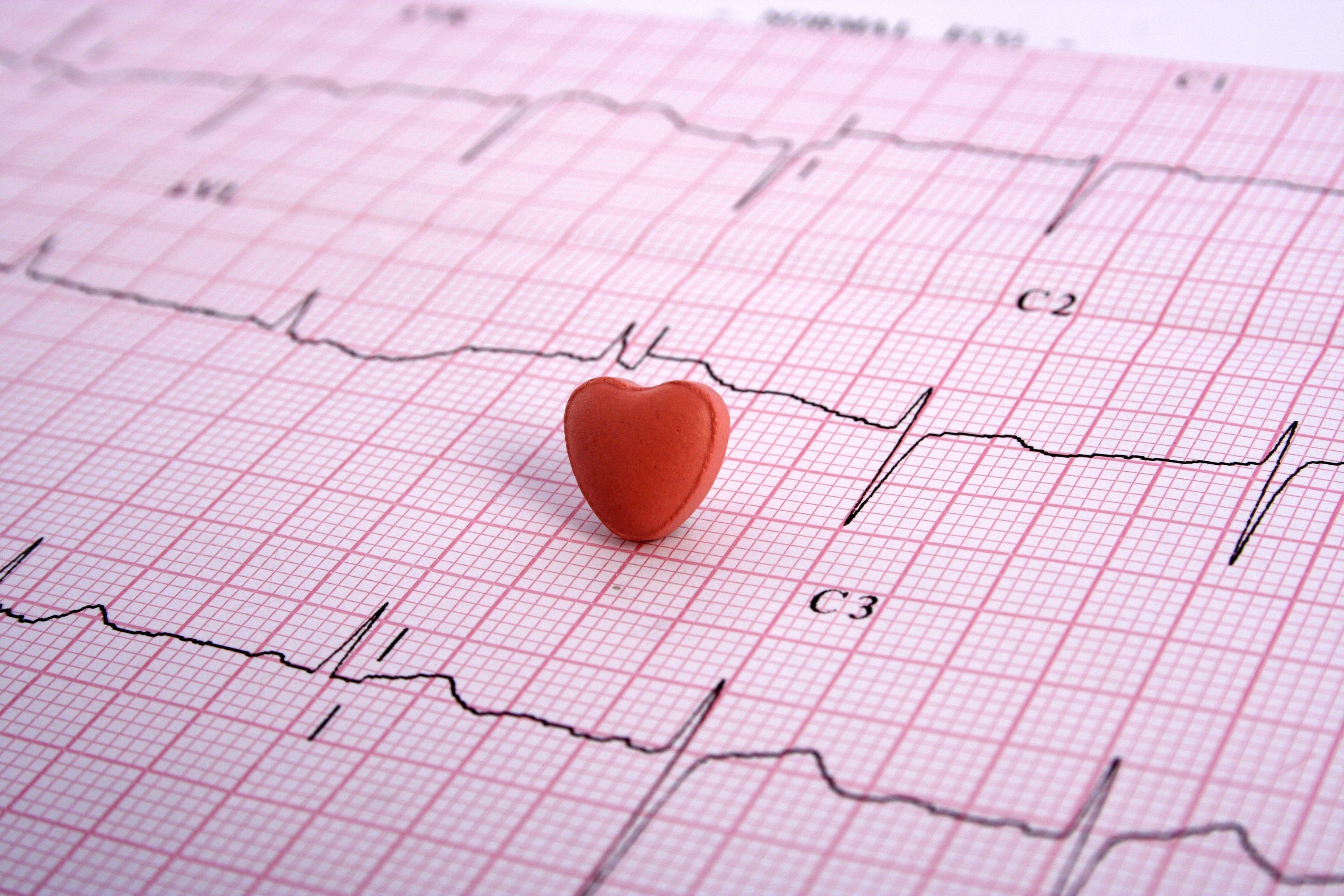 EKG Service In Cleveland, TN
